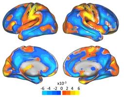 estudio-cambios-cerebro-embarazadas